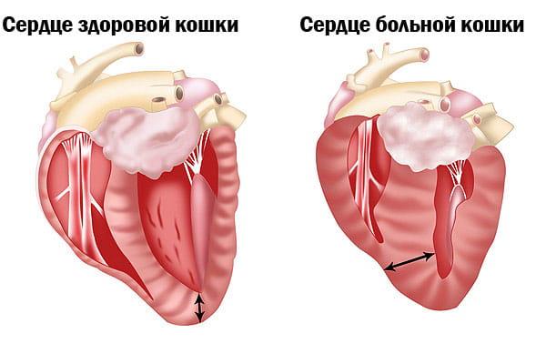 Нормальное сердце и сердце при гипертофической кардиомиопатии